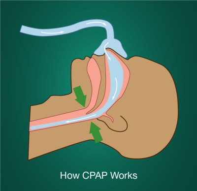 Article Image: treat-sleep-apnea-cpap-therapy