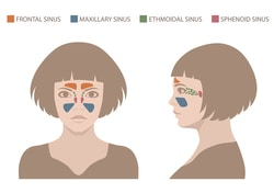 Article Image: sinus-issues-problems-and-prevention