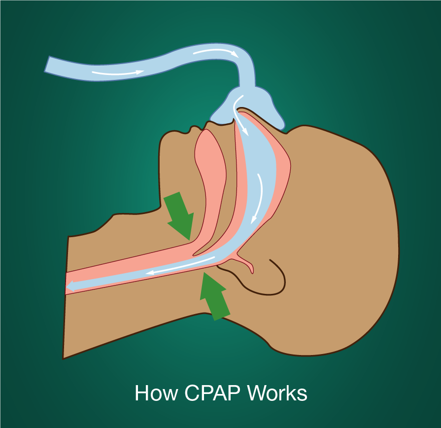 diagram showing how CPAP machines keep airways open