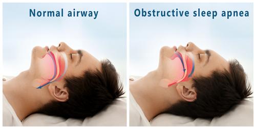 diagram of obstructive sleep apnea