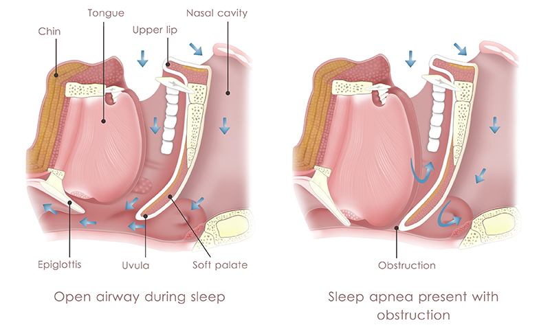 A diagram showing what causes sleep apnea.
